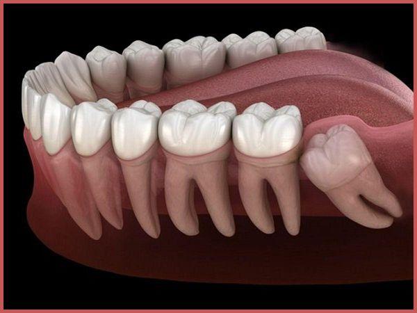 Răng khôn - những điều cần biết - Bệnh viện răng hàm mặt Việt Anh Đức